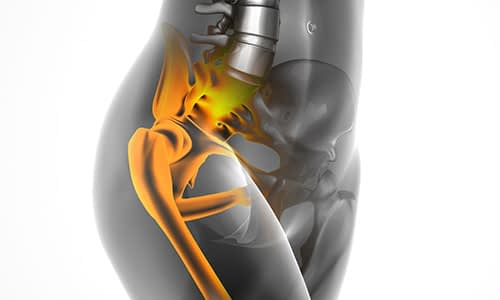 hip replacement Brooksville